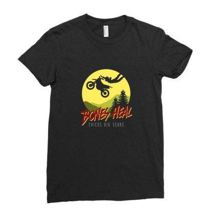 Bones Heal Ladies Fitted T-shirt Designed By Noajansson